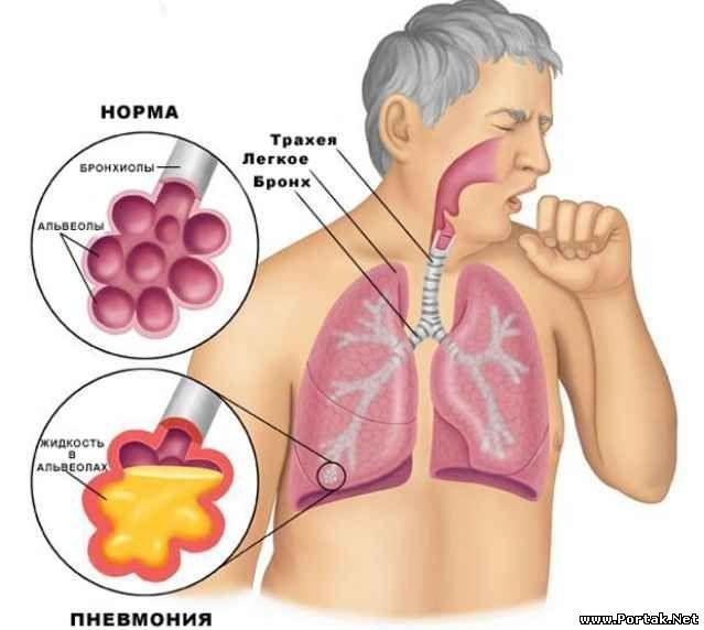the characteristics of emphysema a lung disease